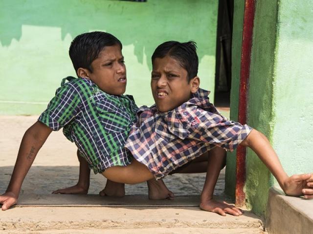 Gemenii siamezi din India, camasa, fundal verde