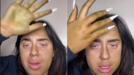 colaj de imagini cu o femeie care are pielea verde dupa ce a folosit autobronzant