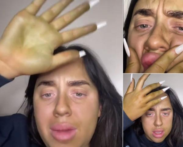 colaj de imagini cu o femeie ce s-a inverzit dupa ce a folosit autobronzant expirat