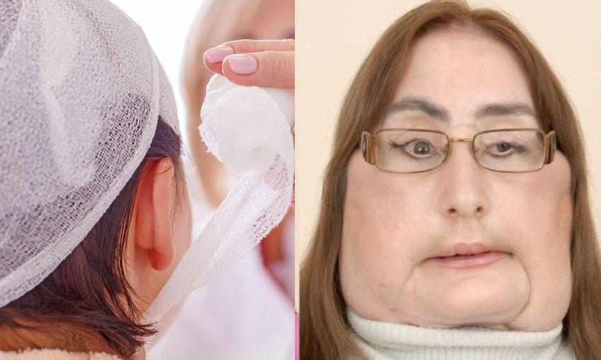 Connie Culp, prima femeie din SUA care și-a făcut transplant de față. Cum arăta înainte ca soțul său să o împuște