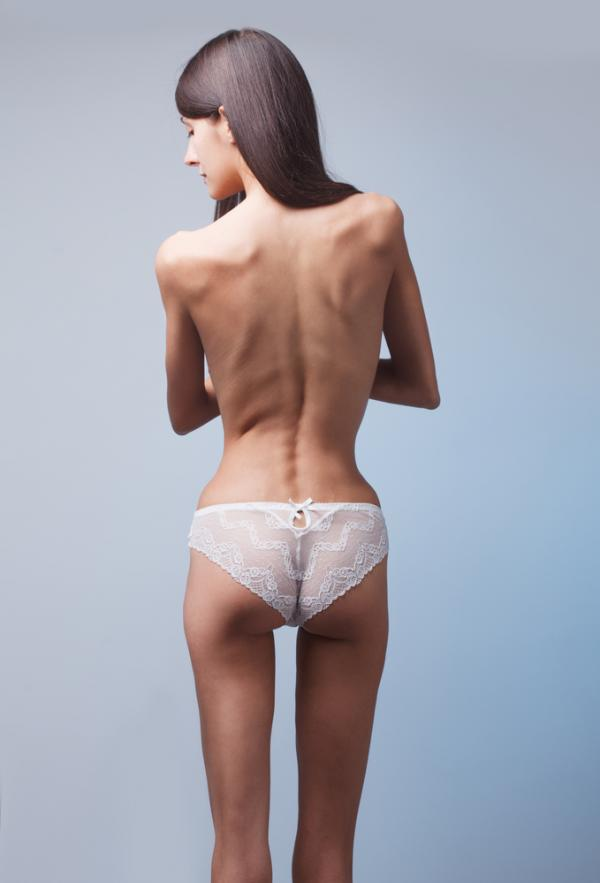 femeie care sufera de anorexie nervoasa si sta cu spatele