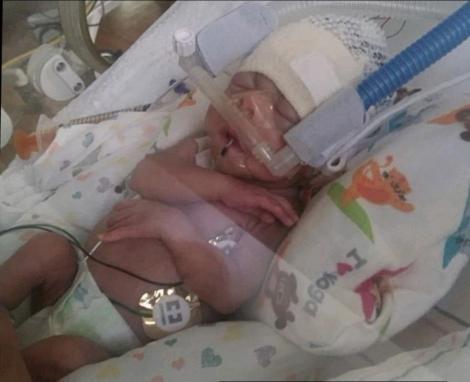 bebelușul născut prematur, având doar 600 de grame