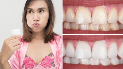 De ce nu ar trebui folosită niciodată apă de gură după spălarea dinților. Avertismentul dentiștilor