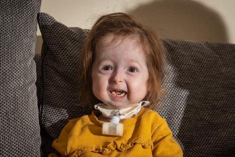"""Isla Kilpatrick-Screaton e singura persoană din lume cu mutația """"Benjamin Button"""". Cum o afectează condiția pe micuță"""
