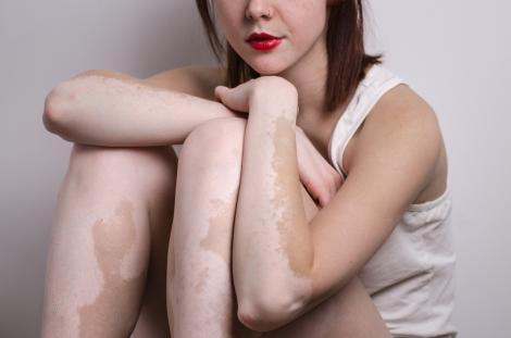 femeie cu vitiligo, cu pete pe piele, stand in fund pe jos, intr-un cadru alb