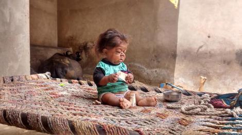 Manpreet Singh are 26 de ani, dar corpul unui bebeluș. Ce ar putea cauza condiția neobișnuită a tânărului