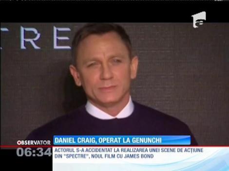 Daniel Craig, operat la genunchi