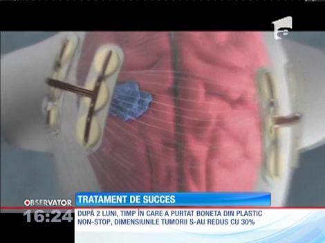 A scapat de cancer cu un dispozitiv medical inedit