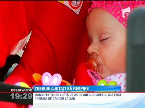Pruncii născuţi prematur au nevoie de ajutor!  Viaţa lor depinde de medici şi de aparate
