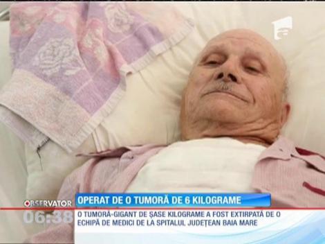 Un bătrân de 86 de ani a trecut printr-o intervenţie în premieră la Baia Mare. Medicii i-au extirpat o tumoră uriaşă, de şase kilograme