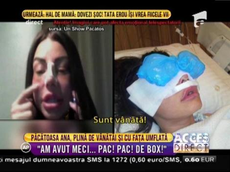 Sexy asistenta lui Capatos a apărut la emisiune plină de vânătăi și cu fața umflată! Ce a pățit Ana Mocanu?