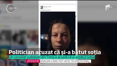 Un consilier judeţean din Timiş, acuzat că şi-a bătut crunt soţia