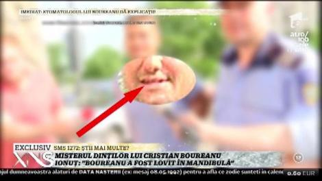 """Misterul dinţilor distruşi ai lui Boureanu se adânceşte! Martor: """"Nu avea nicio umflătură, niciun plasture"""""""