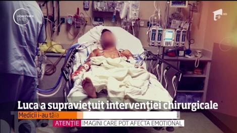 Luca a supravieţuit intervenţiei chirurgicale