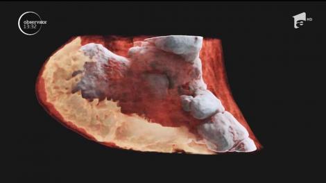 Premieră în lumea medicală. Oamenii de ştiinţă din Noua Zeelandă au realizat prima radiografie 3D color asupra unui om