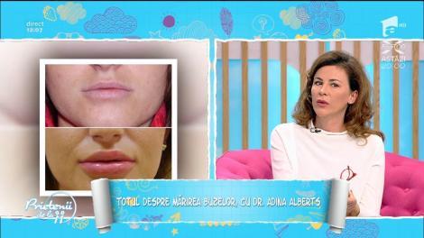 Secretul pe care niciun medic nu l-a spus despre mărirea buzelor! Ce trebuie să afli