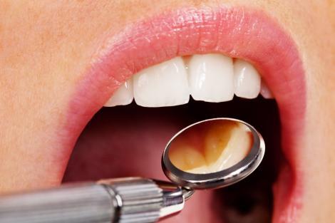 """Alarmant! Un studiu arată că 30% dintre români şi-au pierdut toţi dinţii naturali: """"La 24 de ani, mai aveam doar cinci"""""""