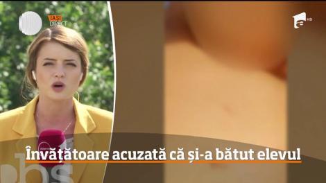 Învățătoare din Botoşani acuzată că și-a bătut elevul până l-ar fi învineţit