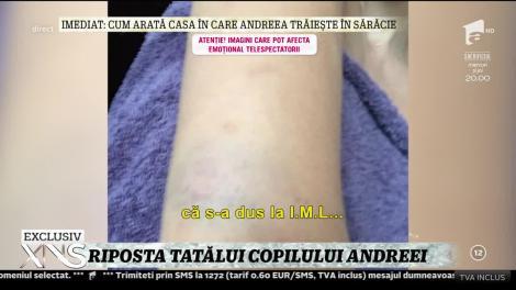 """Riposta fostului iubit al Andreei Podărescu! """"Dacă spune că am bătut-o de ce nu m-a reclamat la Poliţie"""""""