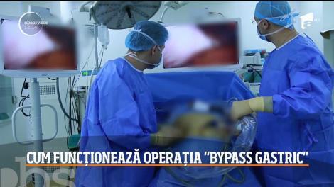 """Chirurgia bariatrică, pe înțelesul tuturor. Ce presupune intervenția """"Gastric Sleeve"""", prin care a slăbit Ozana Barabancea! Video"""